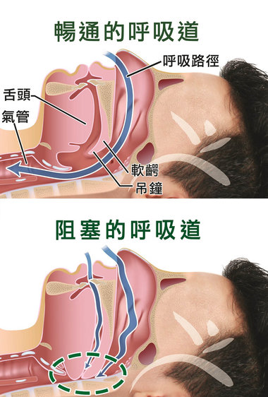 sleep apnea, 睡眠窒息症, OSA, sleep, 睡眠問題, airway, 呼吸氣道